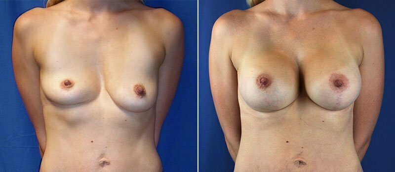breast-lift-with-augmentation-956a-buford