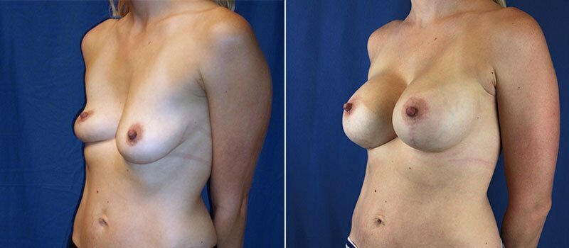breast-lift-with-augmentation-956b-buford