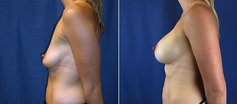breast-lift-with-augmentation-956c-buford