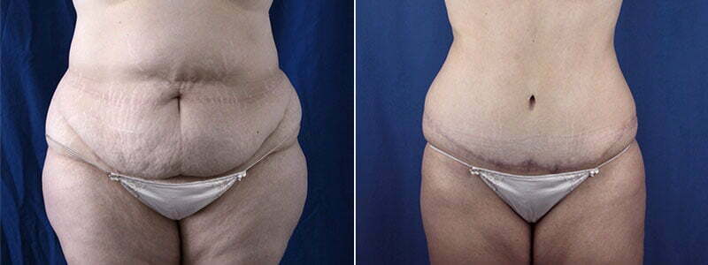 tummy-tuck-with-liposuction-3644a-buford