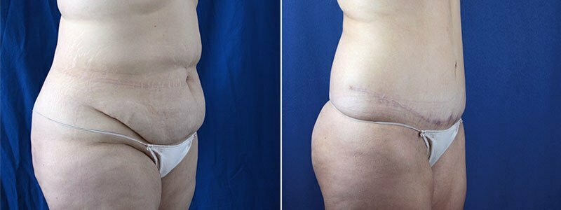 tummy-tuck-with-liposuction-3644b-buford