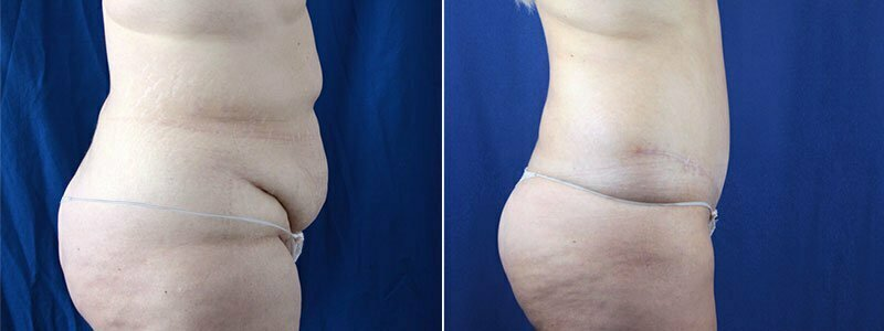 tummy-tuck-with-liposuction-3644c-buford