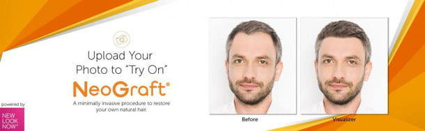 "Upload Your Photo to ""Try On"" NeoGraft"