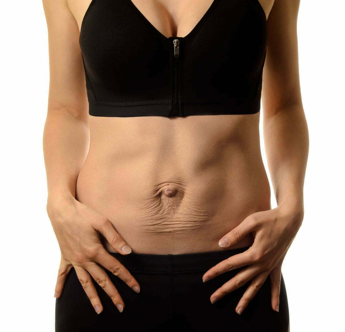 Can Diastasis Recti Cause Groin Pain