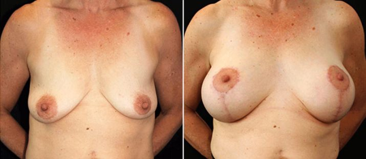 Breast Lift with Implants 11