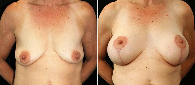 breast-lift-with-implants-17990a-buford