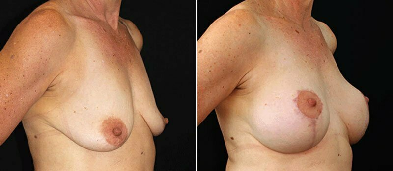 breast-lift-with-implants-17990b-buford