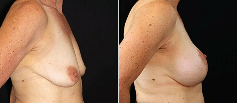 breast-lift-with-implants-17990c-buford