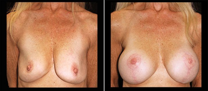 Breast Lift with Implants 12