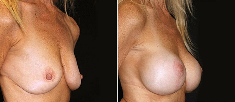 breast-lift-with-implants-17996b-buford
