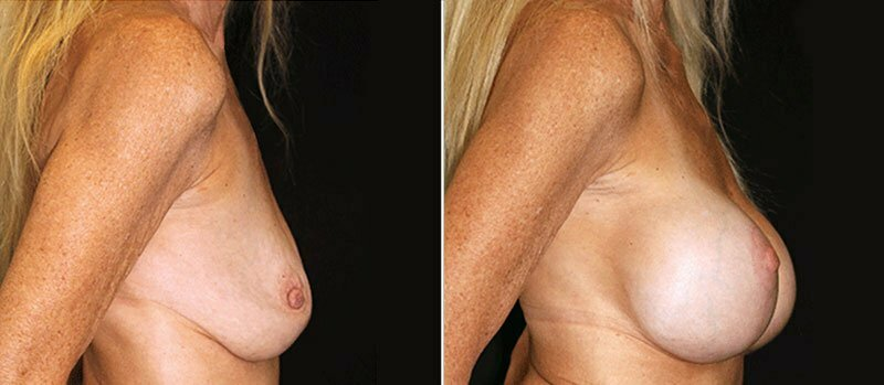 breast-lift-with-implants-17996c-buford